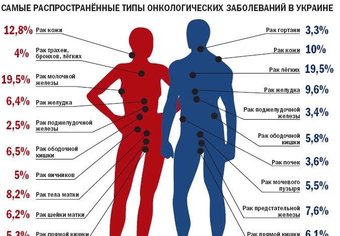 Одесчина № 1 в Украине по заболеванию на рак.Измаил в списке лидеров.