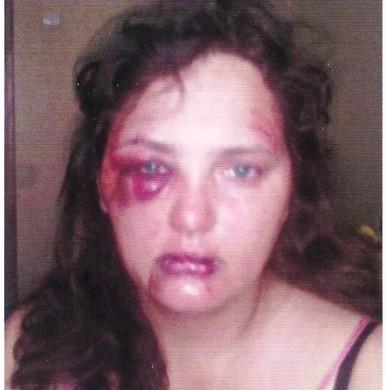 Избитой женщине-майору милиции Измаильская прокуратора «шьет» дело