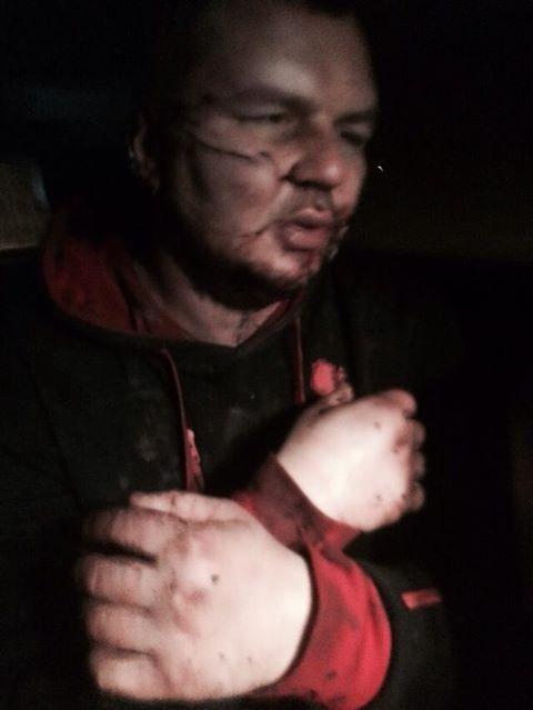 Нашелся лидер автомайдана, у него отрезано ухо, следы жестоких пыток