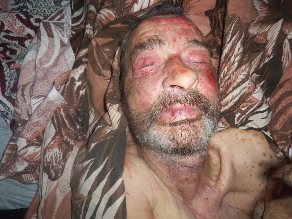 В Измаильском районе в лесополосе нашли труп мужчины  (фото)