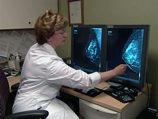 Женщины Бессарабии чаще всего болеют раком молочной железы