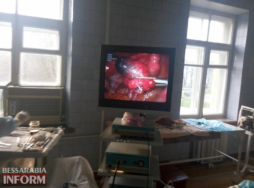 """2-1 Эксклюзив от """"БессарабияINFORM"""": измаильские акушер-гинекологи проводят высокотехнологичные лапароскопические операции (Осторожно, материал содержит откровенные ФОТО)"""