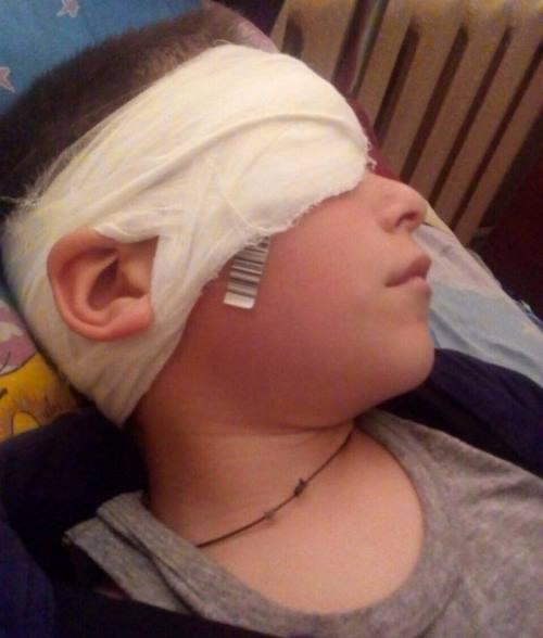 Измаильский р-н: в Старой Некрасовке школьнику проткнули глаз ручкой (фото)