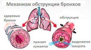 obstrukcija-dyhatelnyh-putej-detej-suzhenie-bronhov-300x165 Ингаляция беродуалом: как и что делать?