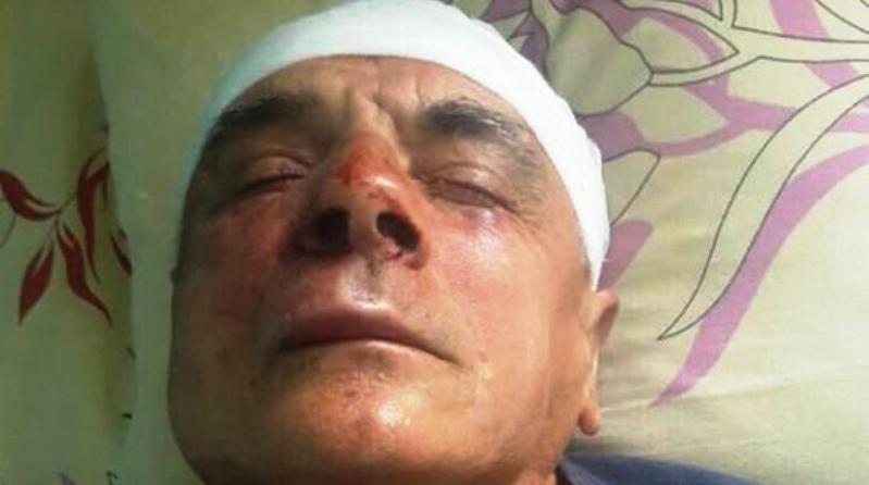 В Измаильском районе избит известный фермер — депутат Одесского облсовета | Бессарабия Информ - Новости Измаила, Килии, Рени и Болграда