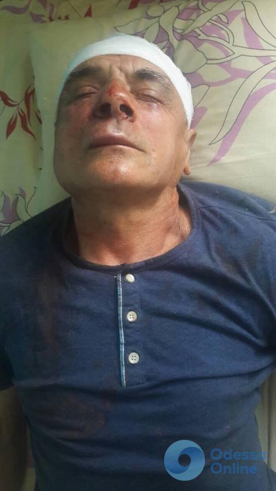 В Измаильском районе избит известный фермер - депутат Одесского облсовета
