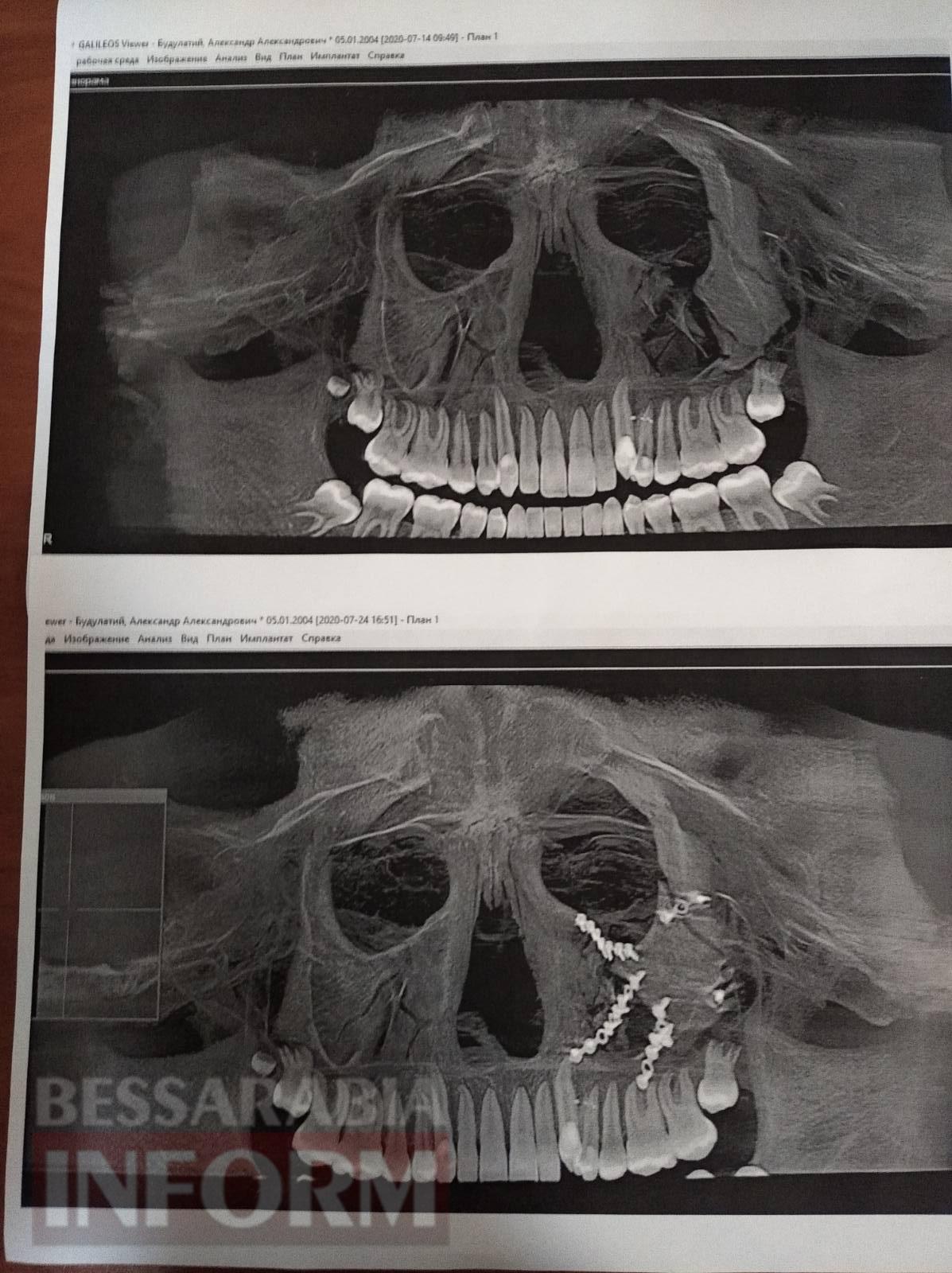Тяжелые переломы лицевых костей и черепно-мозговая травма: в Килии шестеро мужчин жестоко избили 15-летнего подростка