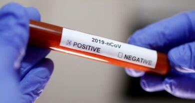 «Если нет симптомов»: в Минздраве разрешили не делать ПЦР-тест после самоизоляции