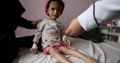 «Мама» из Аккермана морила голодом дочь, держа её под замком 1,5 месяца. Ребёнок ел побелку со стен запертого дома